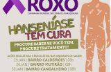 JANEIRO ROXO – Campanha alerta população contra Hanseníase
